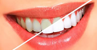 Teeth Whitening Cost In South Africa